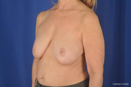 Breast Lift: Patient 17 - Before and After Image 4