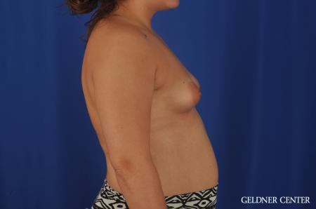 Breast Augmentation Hinsdale, Chicago 5466 - Before Image 3