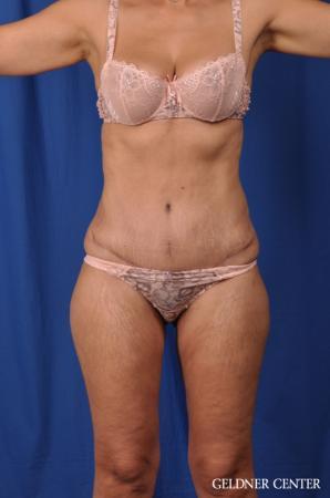 Lipoabdominoplasty: Patient 5 - After Image