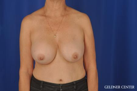 Chicago Breast Augmentation 4285 - Before Image 1