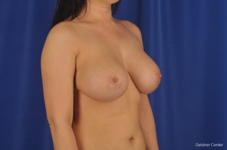 Chicago Complex Breast Augmentation 2288 -  After Image 3