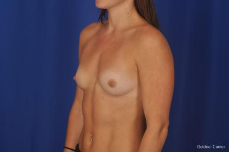 Chicago Breast Augmentation 2393 - Before and After Image 3