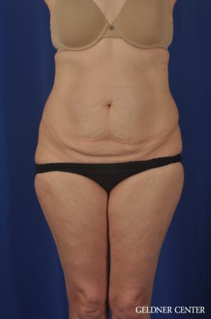 Liposuction: Patient 33 - Before 1