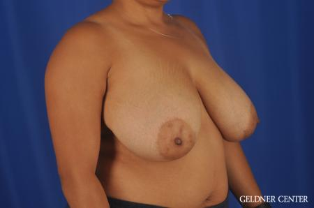 Breast Reduction Lake Shore Dr, Chicago 9099 - Before 2