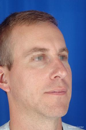 Rhinoplasty For Men: Patient 1 - After Image 2
