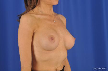 Breast Augmentation Lake Shore Dr, Chicago 2295 -  After Image 3