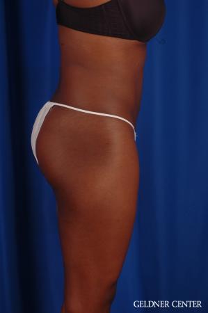 Liposuction: Patient 42 - After Image 3