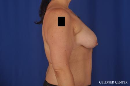 Breast Augmentation: Patient 161 - Before 3