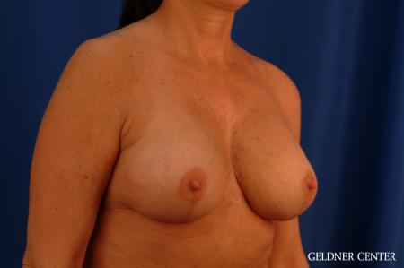 Chicago Breast Lift 2617 -  After Image 3