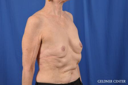 Breast Augmentation: Patient 138 - Before Image 3