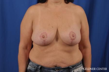 Breast Reduction: Patient 31 - After Image 1