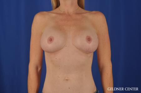 Chicago Complex Breast Augmentation 4005 -  After Image 1