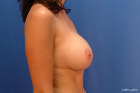 Breast Augmentation Streeterville, Chicago 2437 -  After Image 2