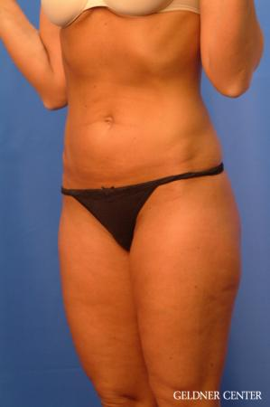 Vaser lipo patient 2624 before and after photos - Before and After Image 5