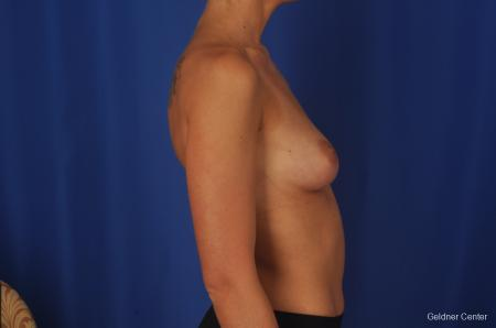 Chicago Complex Breast Augmentation 2381 - Before Image 2
