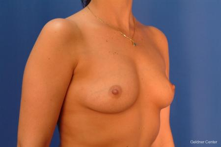 Chicago Breast Augmentation 2432 - Before Image 3
