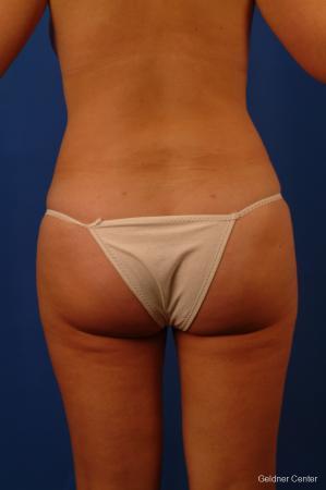 Liposuction: Patient 13 - After Image 5