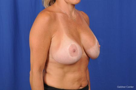 Breast Augmentation Hinsdale, Chicago 2391 -  After Image 3