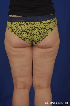 Liposuction: Patient 44 - Before Image 4