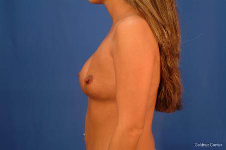 Chicago Breast Augmentation 2526 - Before and After Image 4