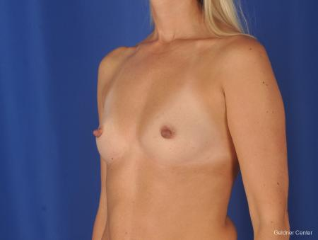 Breast Augmentation: Patient 148 - Before and After Image 4