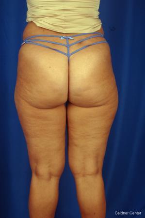 Liposuction: Patient 7 - Before Image 4