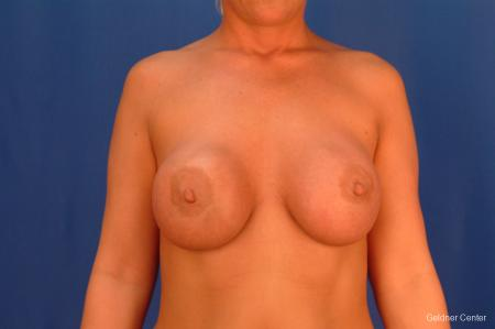 Complex Breast Augmentation Streeterville, Chicago 2428 - Before Image 1
