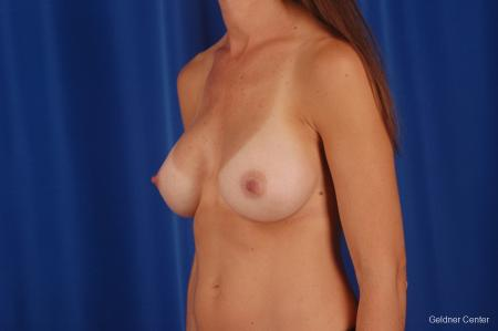 Chicago Breast Augmentation 2294 -  After Image 5