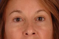 Eyelid Lift Lake Shore Dr, Chicago 2338 - After Image
