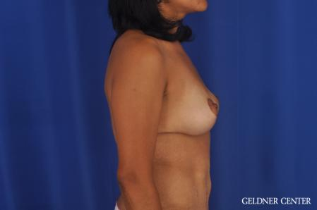 Breast Lift: Patient 49 - After Image 3