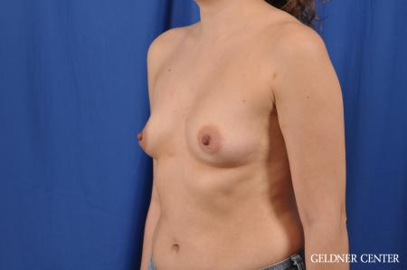 Breast Augmentation: Patient 144 - Before and After Image 4