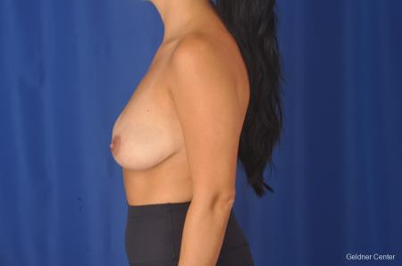 Breast Augmentation: Patient 78 - Before Image 4
