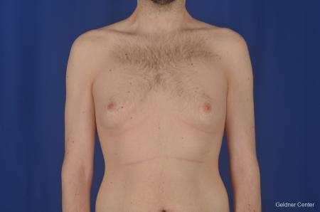 Gynecomastia: Patient 3 - Before Image