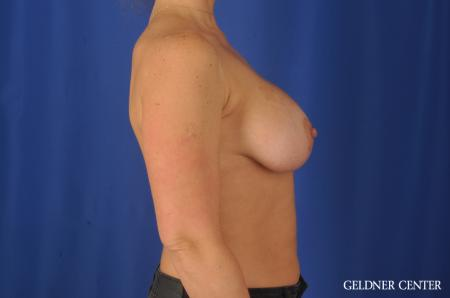 Breast Augmentation: Patient 80 - After Image 2