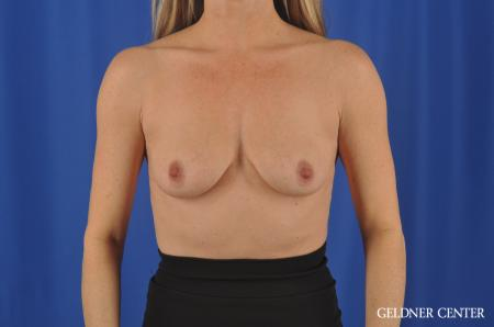 Breast Augmentation Hinsdale, Chicago 11861 - Before Image 1