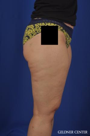 Liposuction: Patient 44 - Before Image 3