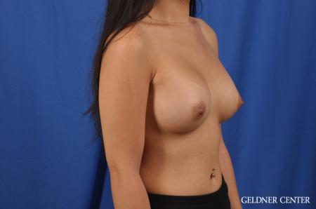 Breast Augmentation: Patient 146 - After Image 3