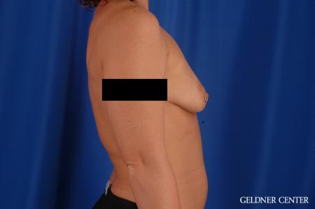 Breast Augmentation: Patient 171 - Before Image 3