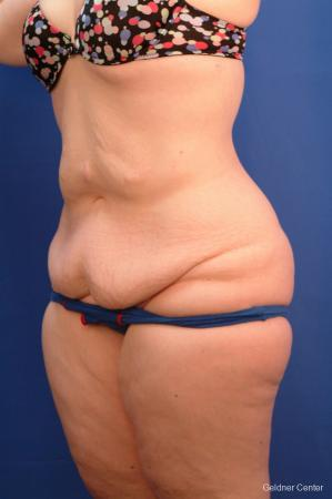 Tummy Tuck: Patient 10 - Before and After Image 3