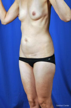 Tummy Tuck: Patient 6 - Before and After Image 4