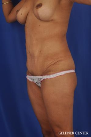 Tummy Tuck: Patient 33 - After Image 4