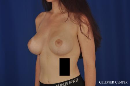 Breast Augmentation Streeterville, Chicago 5547 -  After 4