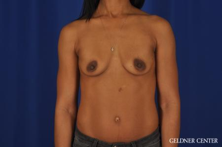 Chicago Breast Augmentation 4291 - Before Image 1