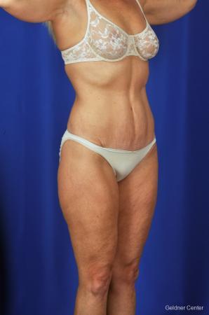 Liposuction: Patient 4 - After Image 2