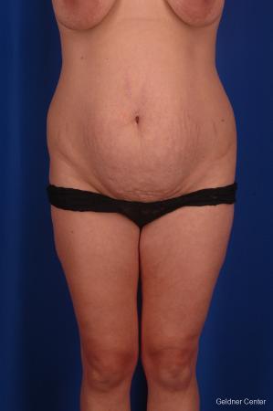 Lipoabdominoplasty: Patient 1 - Before Image