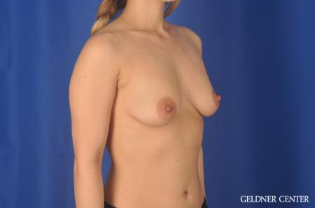 Breast Augmentation Lake Shore Dr, Chicago 11849 - Before Image 3