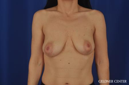 Chicago Breast Lift 6656 - Before Image 1