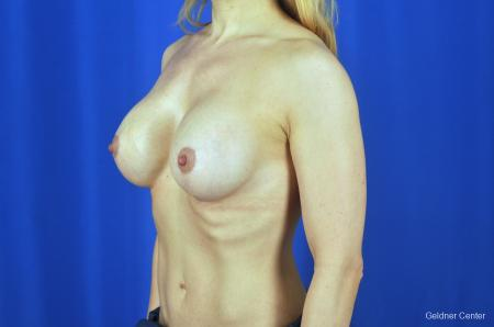 Chicago Breast Lift 2072 -  After Image 4