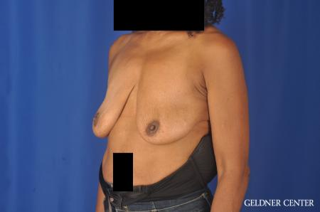 Breast Lift: Patient 22 - Before and After Image 4