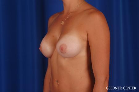 Breast Augmentation: Patient 172 - After Image 4